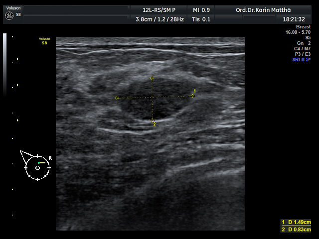 Schmerzhafter Knoten in der Brust