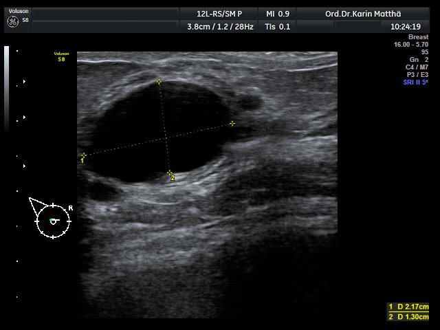 Knoten in der Brust Ursachen: Zyste,
